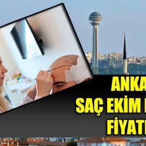 Ankara Saç Ekimi Fiyatları 2021 (EN KALİTELİ VE UYGUN)