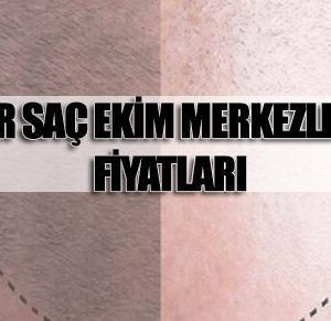 İzmir Saç Ekimi Fiyatları ve En İyi Merkezler 2021 (EN ÇOK TERCİH EDİLEN)