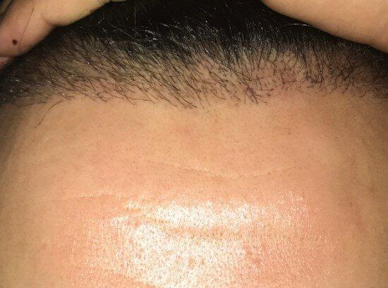 Saç Ekim Teknikleri ve Evreleri