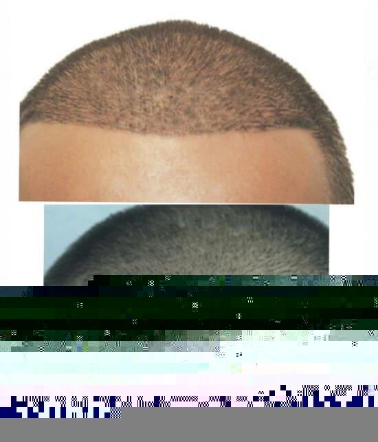 Saç Ekiminde 10. Gün