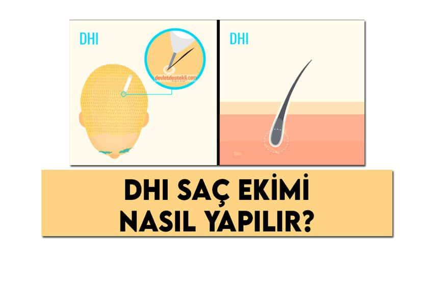 DHI Saç Ekimi Nasıl Yapılır? Yaptıranların Tavsiyeleri